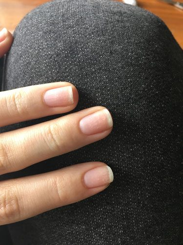 Existe-t-il un moyen de se blanchir les ongles ?